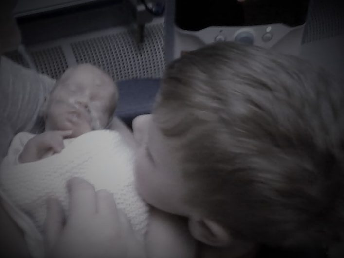 Melody and Her Brother. Before Neonatal Death.